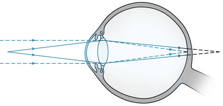 Ďalekozrakosť   hypermetropia   4da27023070